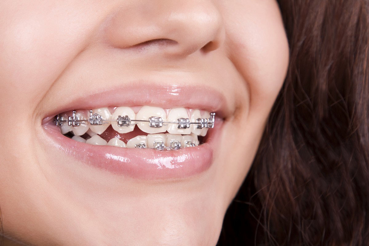 Metal Braces for Teeth