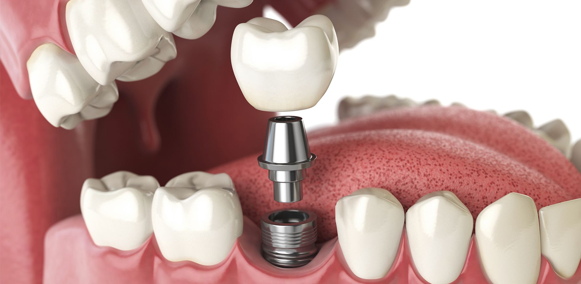 Why You May Need a Bone Graft Before Teeth Implants in California